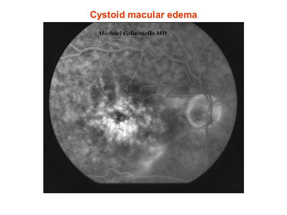 Cystoid macular edema