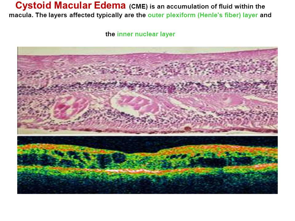 Cystoid Macular Edema (CME) is an accumulation of fluid within the macula.