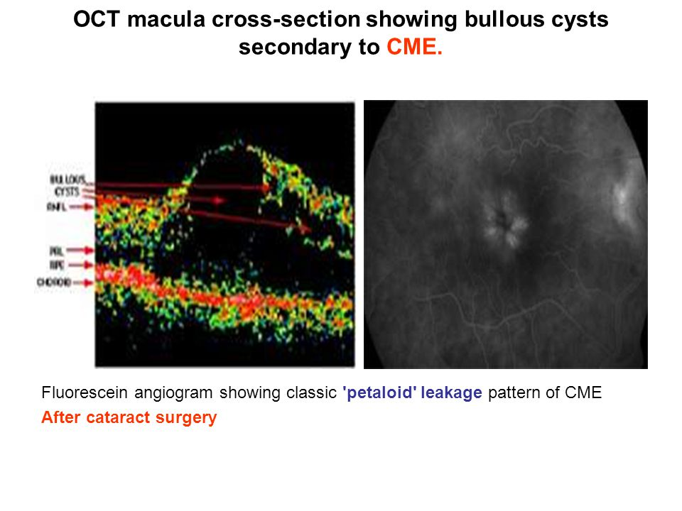 OCT macula cross-section showing bullous cysts secondary to CME.
