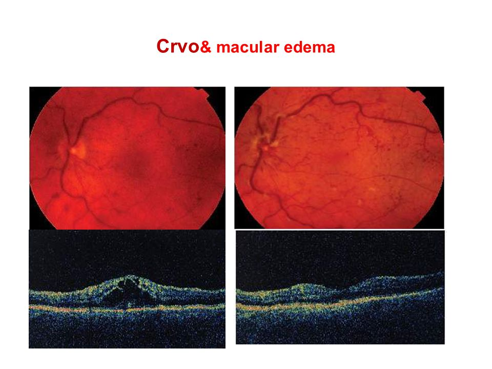 Crvo& macular edema