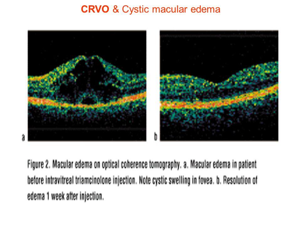 CRVO & Cystic macular edema