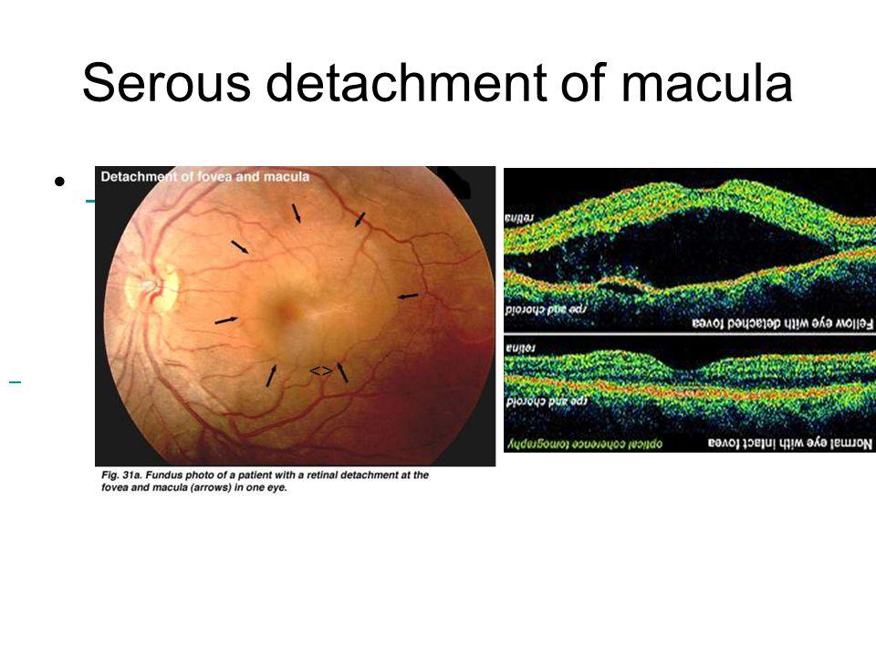 Serous detachment of macula