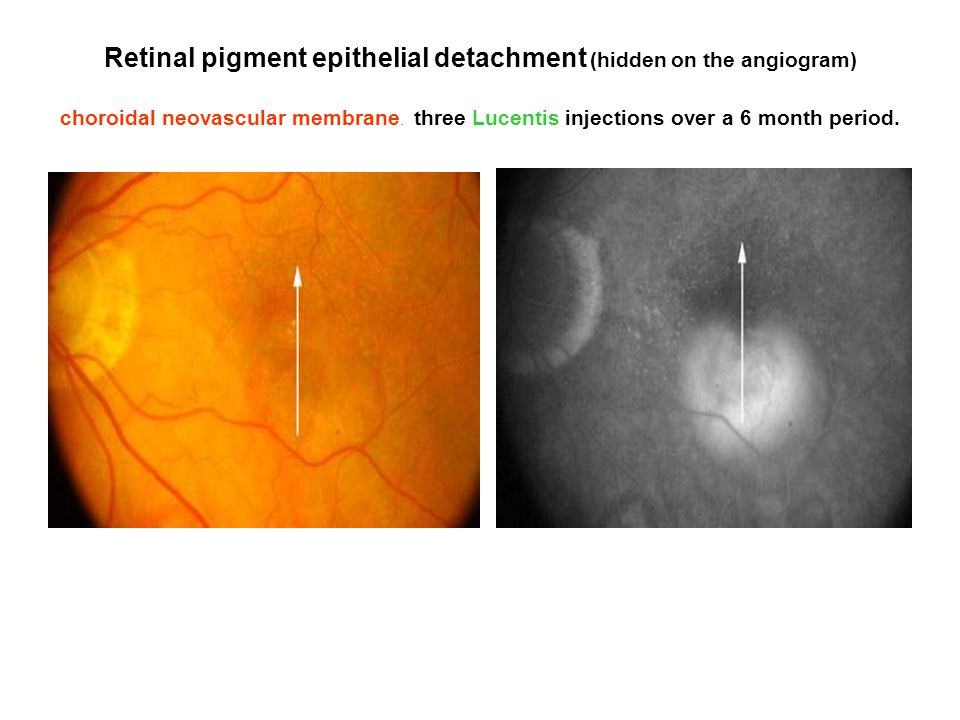 Retinal pigment epithelial detachment (hidden on the angiogram) choroidal neovascular membrane. three Lucentis injections over a 6 month period.