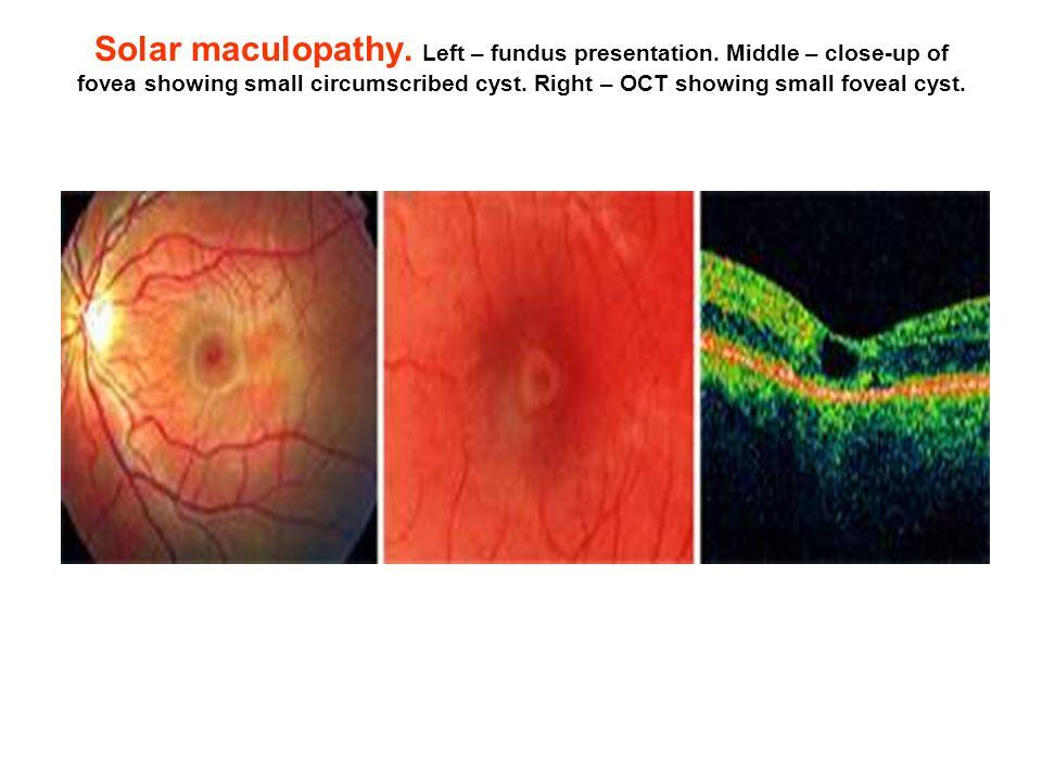 Solar maculopathy. Left – fundus presentation