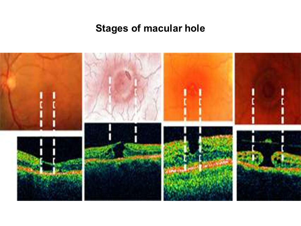 Stages of macular hole
