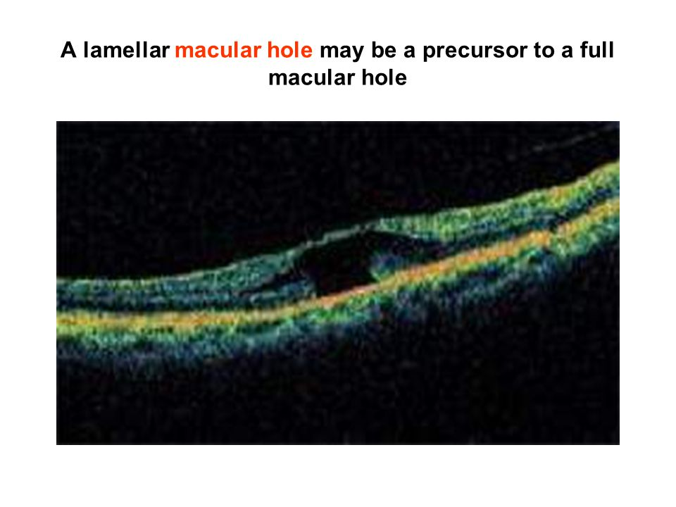 A lamellar macular hole may be a precursor to a full macular hole