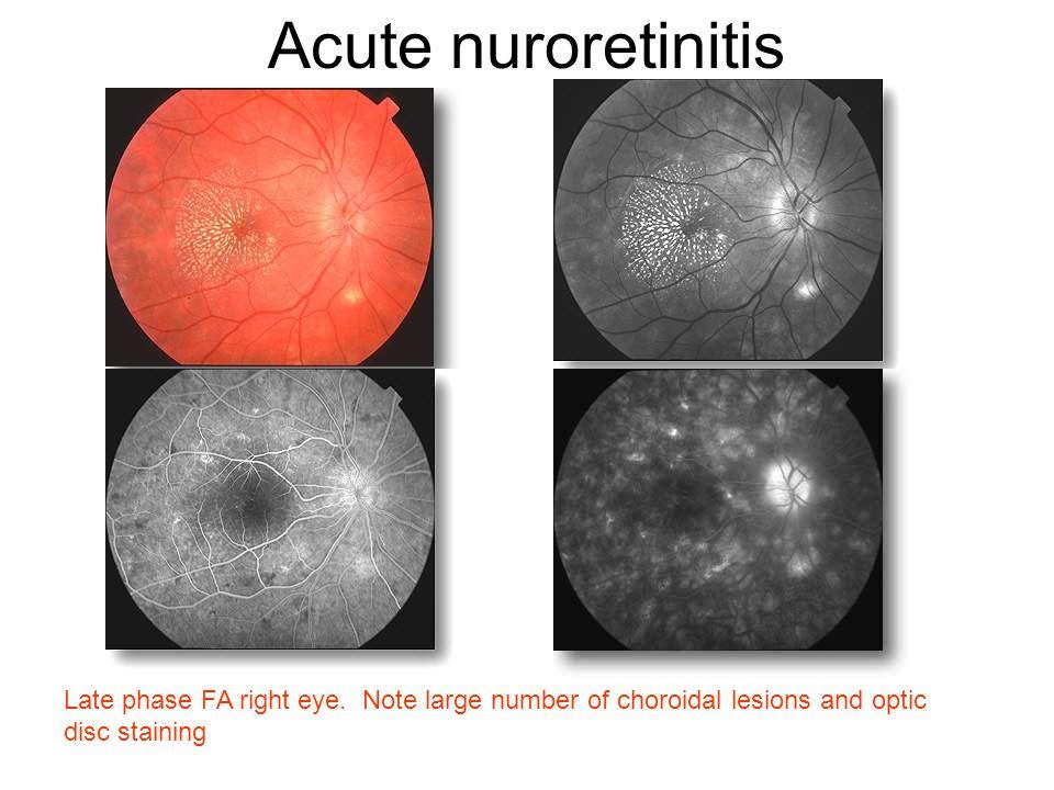 Acute nuroretinitis Late phase FA right eye.