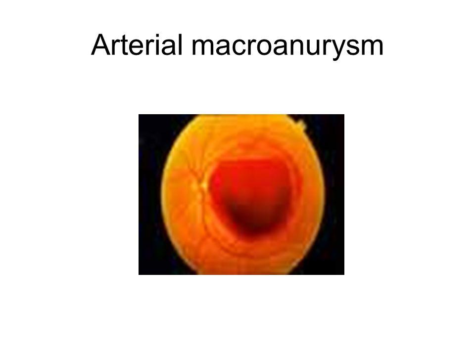 Arterial macroanurysm