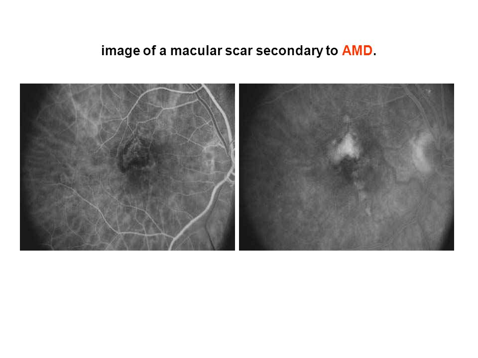 image of a macular scar secondary to AMD.