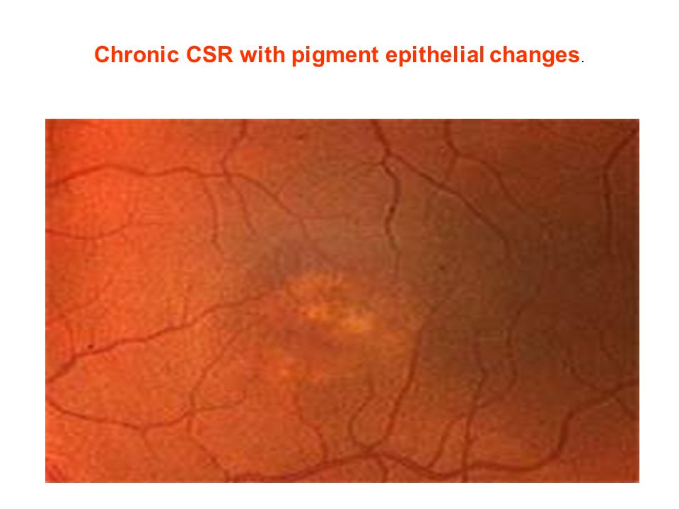 Chronic CSR with pigment epithelial changes.