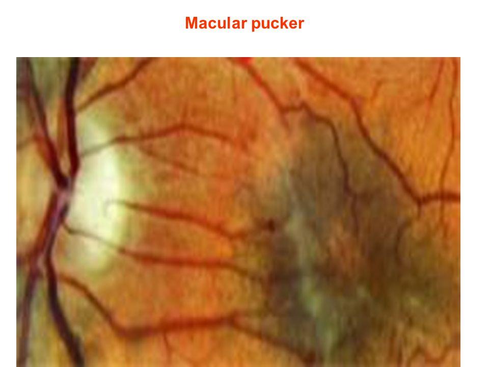 Macular pucker