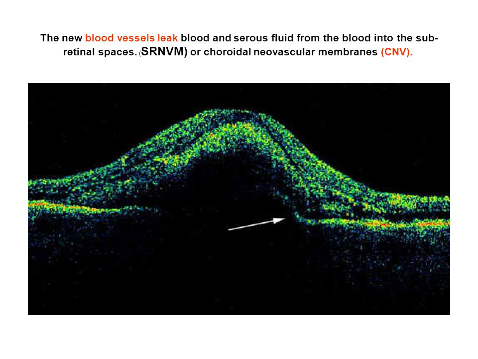 The new blood vessels leak blood and serous fluid from the blood into the sub-retinal spaces.