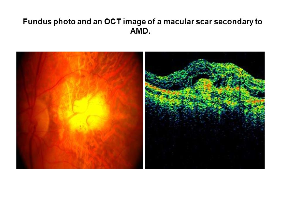 Fundus photo and an OCT image of a macular scar secondary to AMD.