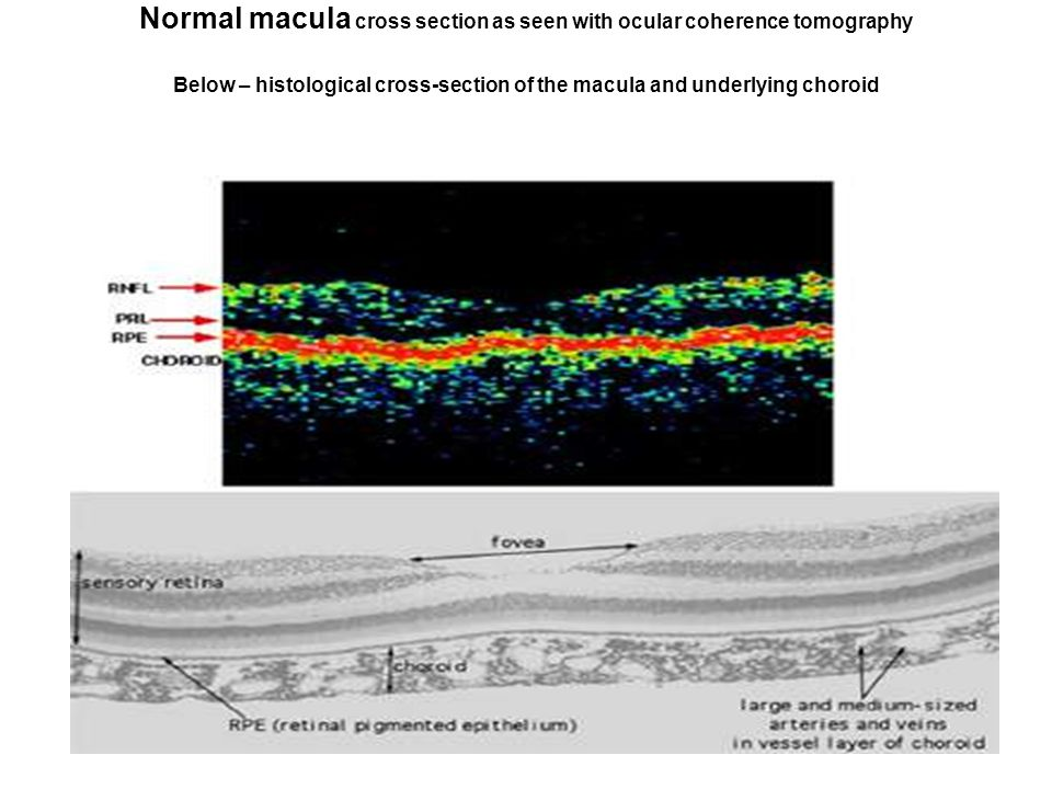Normal macula cross section as seen with ocular coherence tomography Below – histological cross-section of the macula and underlying choroid