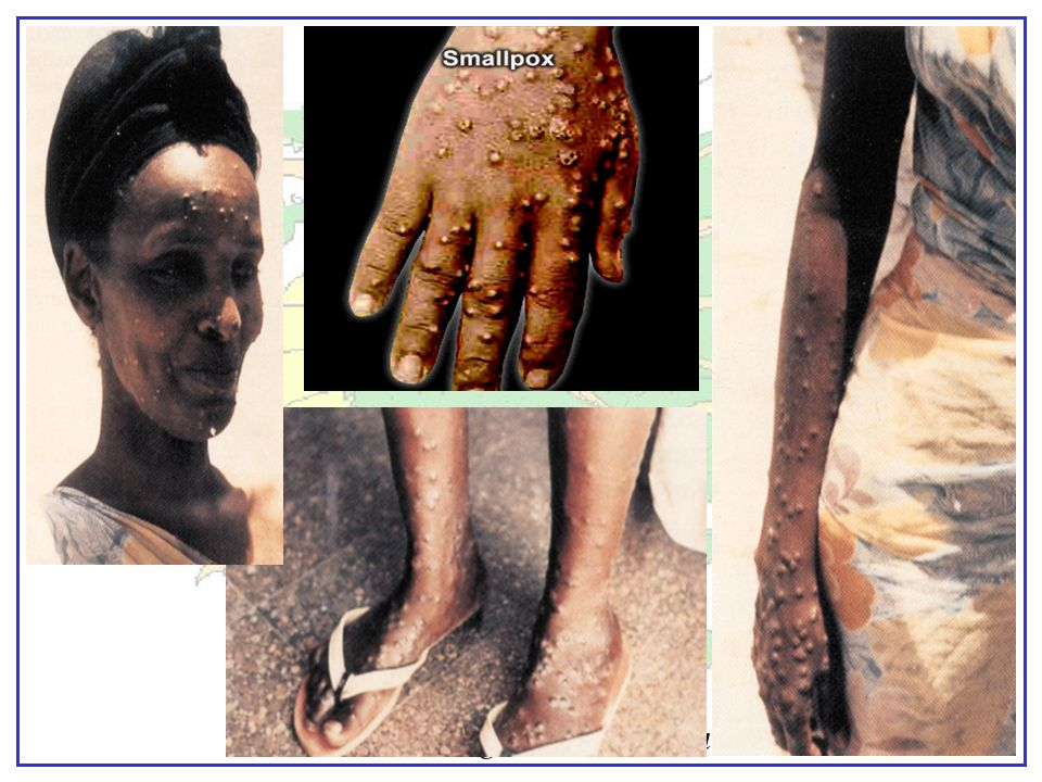 Untreated woman 12 days after onset of rash.