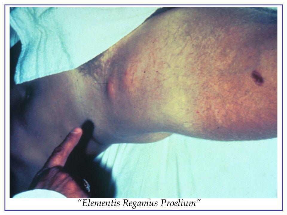 Bubonic Plague - femoral buboes - swollen , painful lymphnodes.