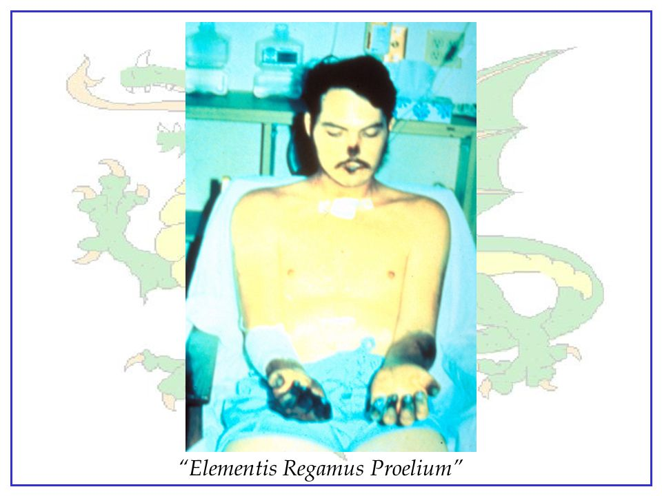 Patient recovering from bubonic plague that progressed into septicemic and pneumonic.