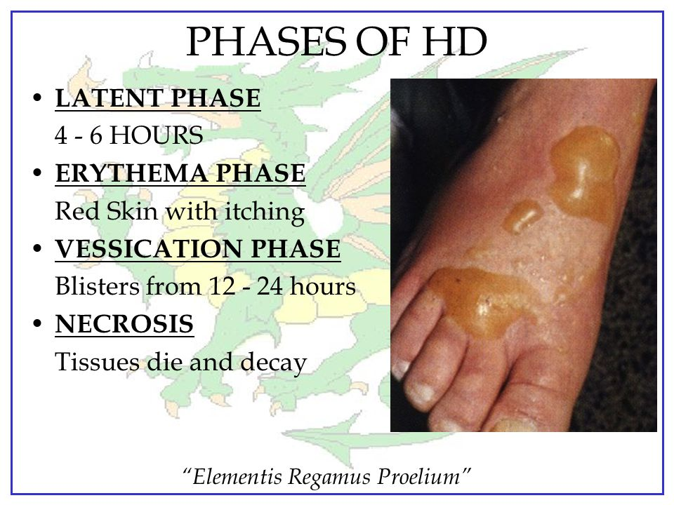 PHASES OF HD LATENT PHASE 4 - 6 HOURS ERYTHEMA PHASE