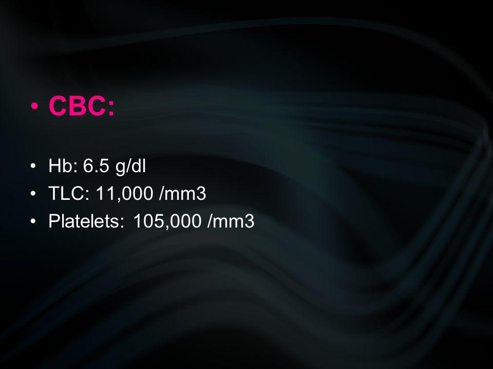 CBC: Hb: 6.5 g/dl TLC: 11,000 /mm3 Platelets: 105,000 /mm3