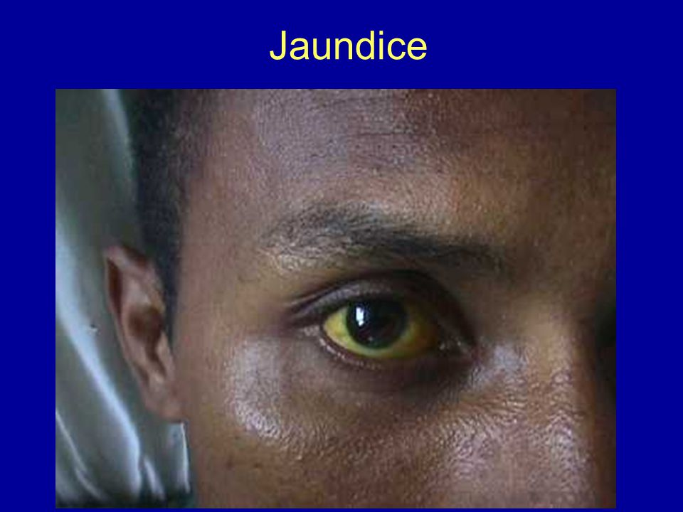 Jaundice on Biliary System Disorders