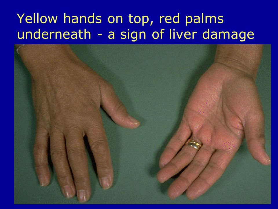 Yellow hands on top, red palms underneath - a sign of liver damage