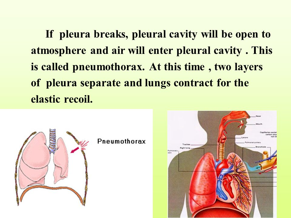 If pleura breaks, pleural cavity will be open to atmosphere and air will enter pleural cavity .
