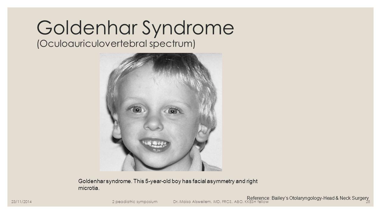 Goldenhar Syndrome (Oculoauriculovertebral spectrum)