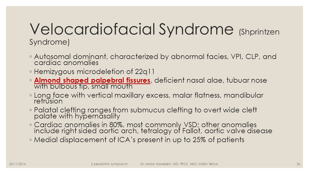 Velocardiofacial Syndrome (Shprintzen Syndrome)