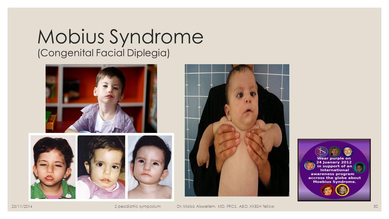 Mobius Syndrome (Congenital Facial Diplegia)