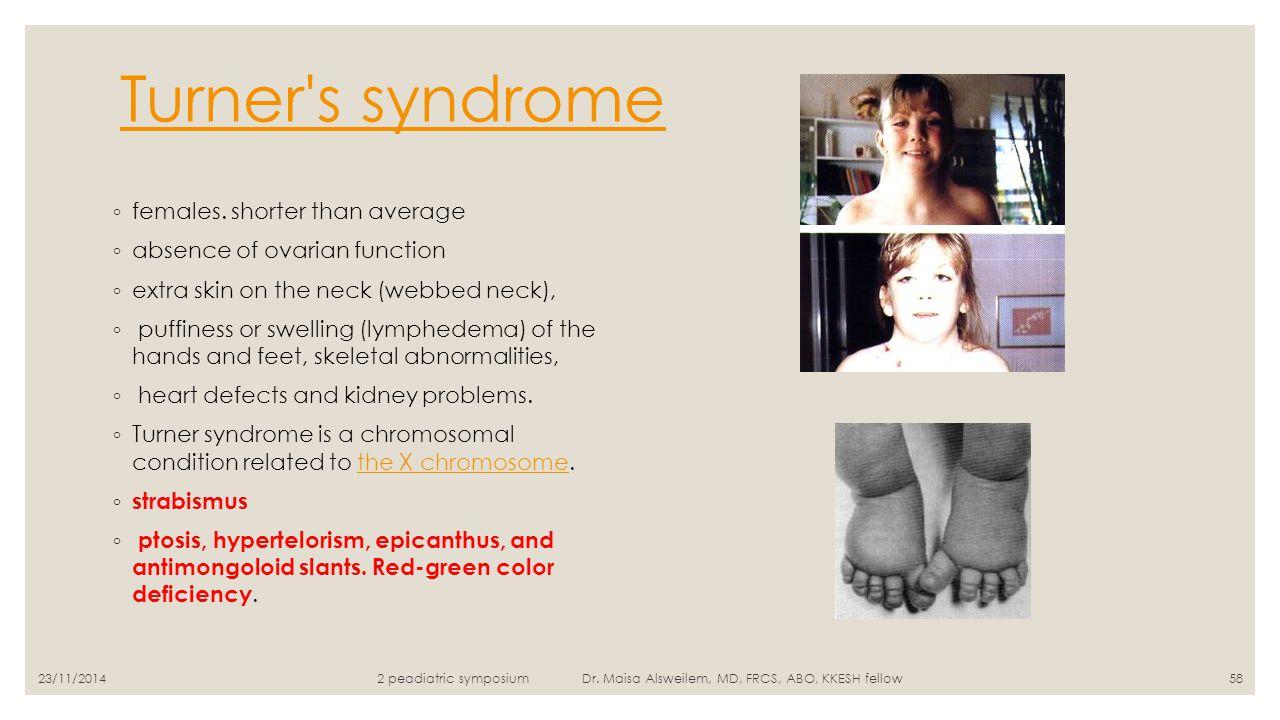 Turner s syndrome females. shorter than average