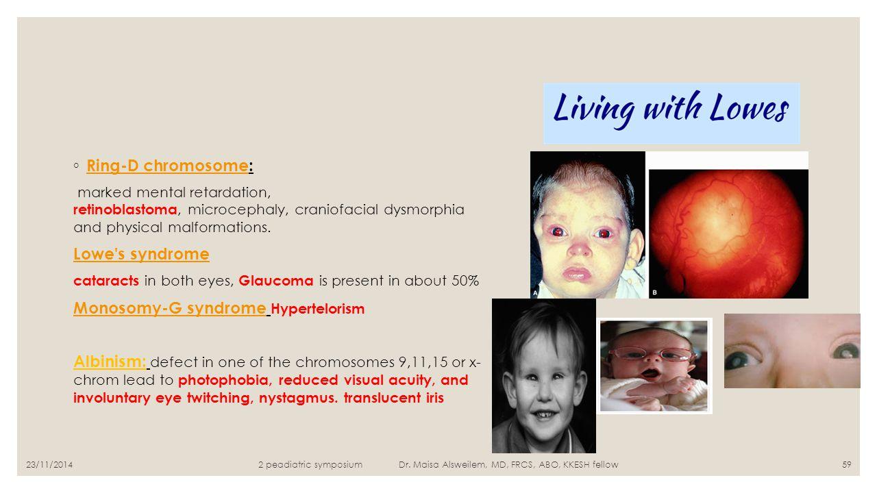 Monosomy-G syndrome Hypertelorism