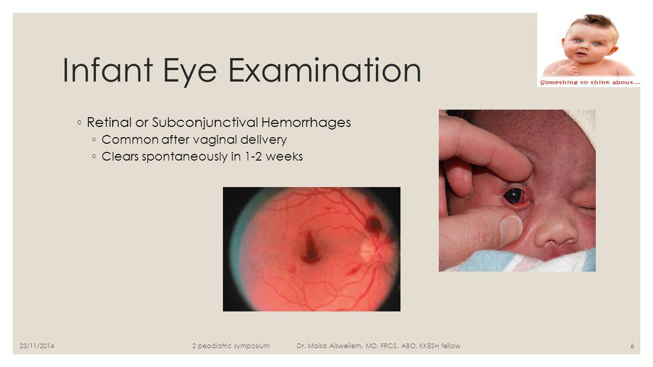 Infant Eye Examination