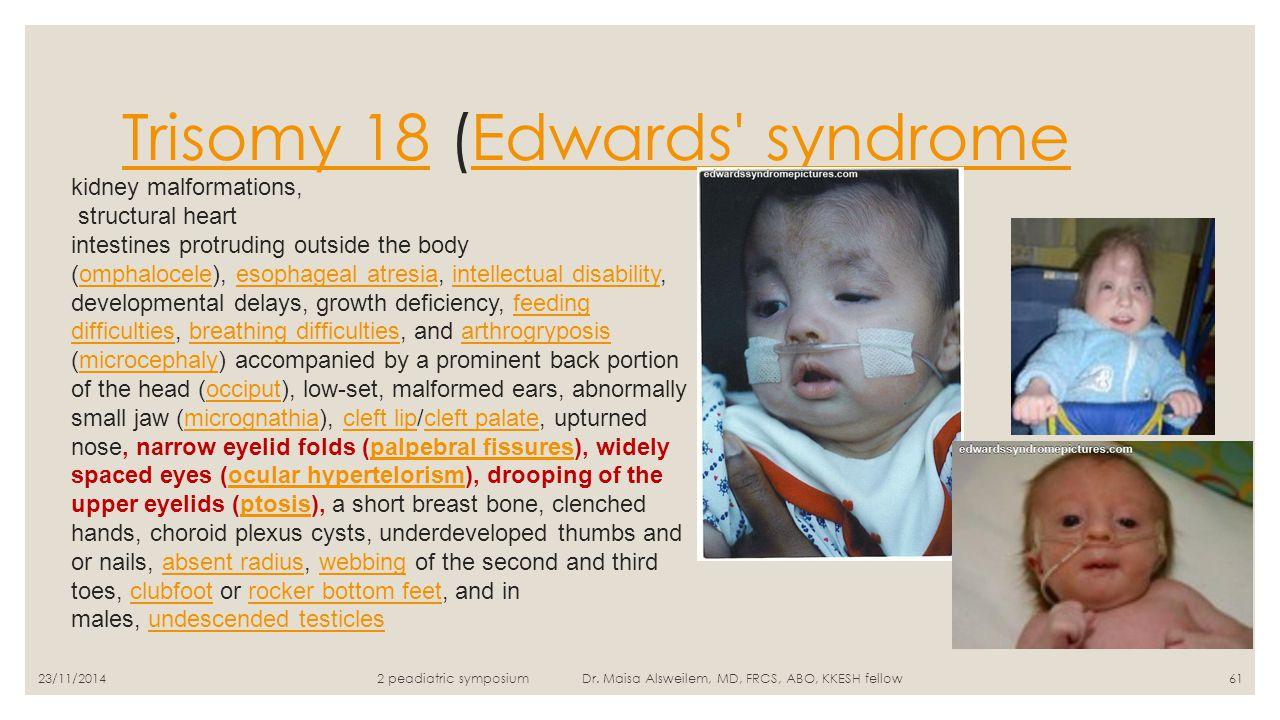 Trisomy 18 (Edwards syndrome