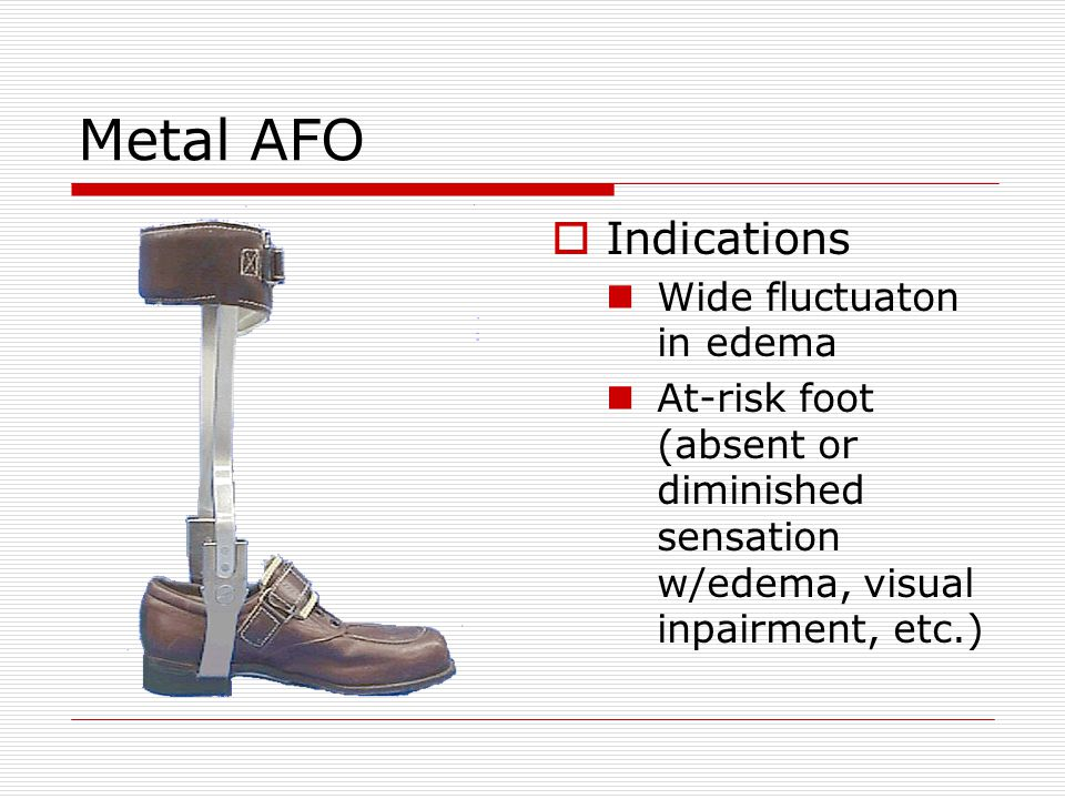 Metal AFO Indications Wide fluctuaton in edema