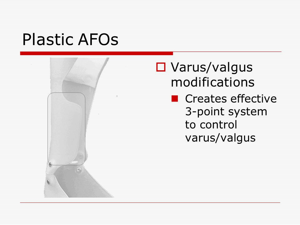Plastic AFOs Varus/valgus modifications