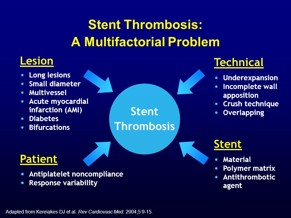 Stent Thrombosis: A Multifactorial Problem