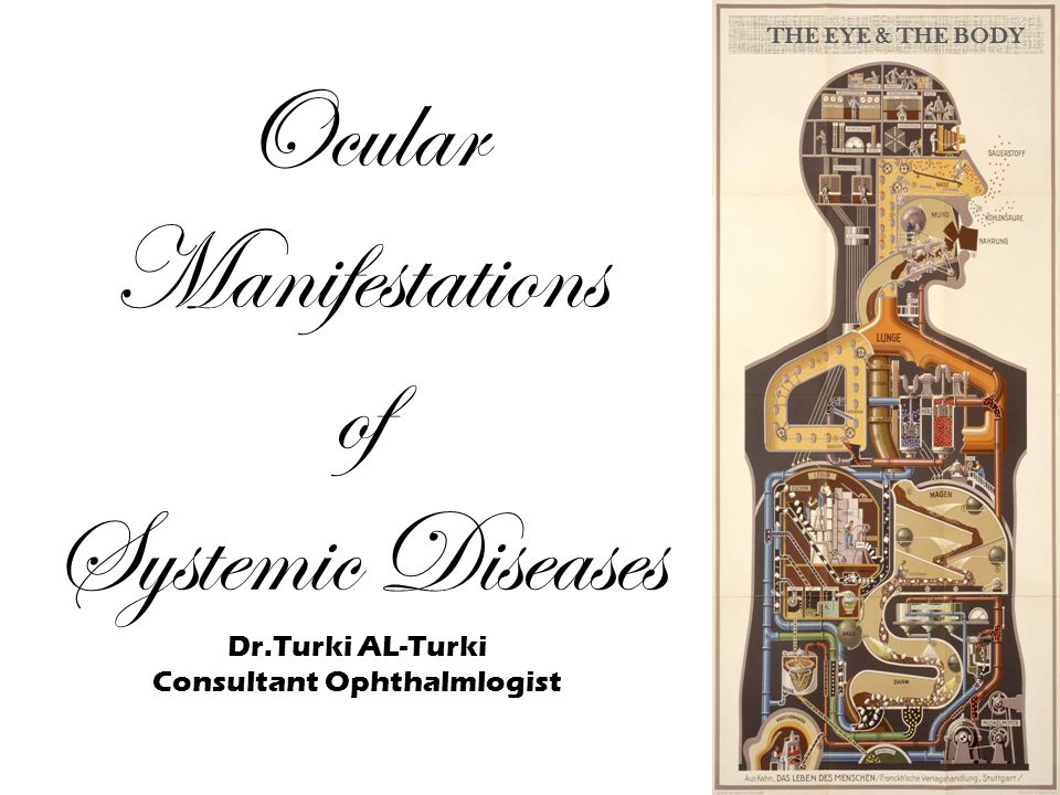 THE EYE & THE BODY Ocular Manifestations of Systemic Diseases Dr.Turki AL-Turki Consultant Ophthalmlogist.