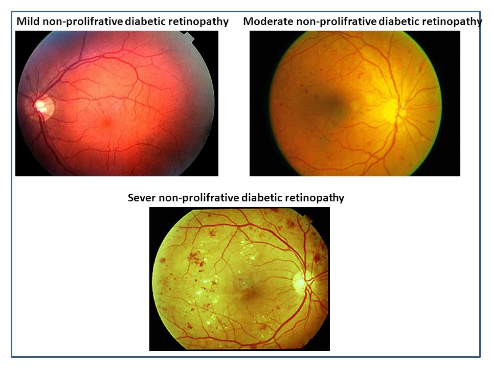 Mild non-prolifrative diabetic retinopathy