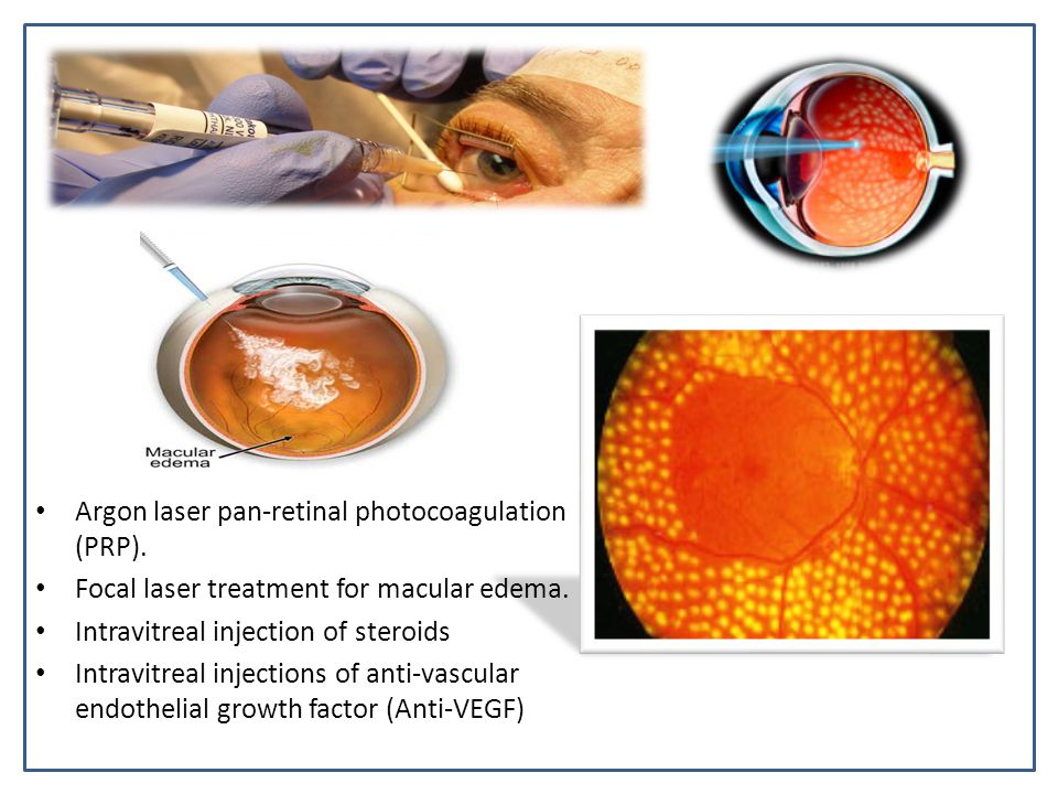 Argon laser pan-retinal photocoagulation (PRP).