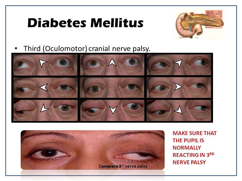 Diabetes Mellitus Third (Oculomotor) cranial nerve palsy.