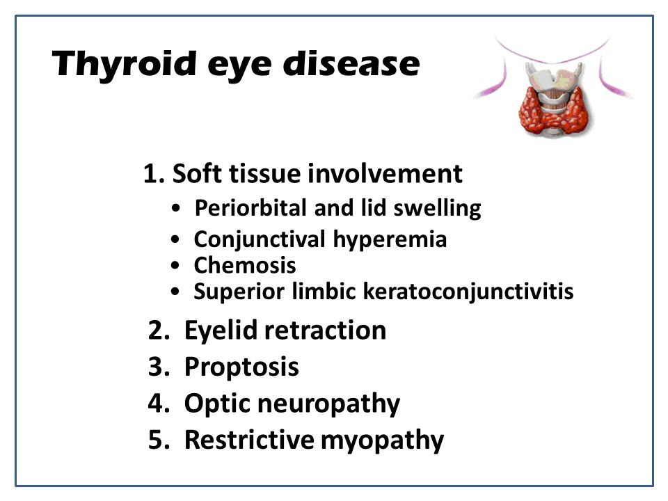 Thyroid eye disease 1. Soft tissue involvement 2. Eyelid retraction