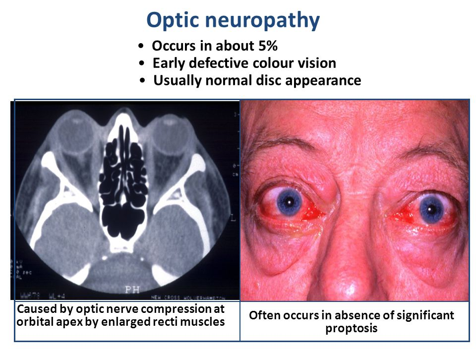 Optic neuropathy Occurs in about 5% Early defective colour vision