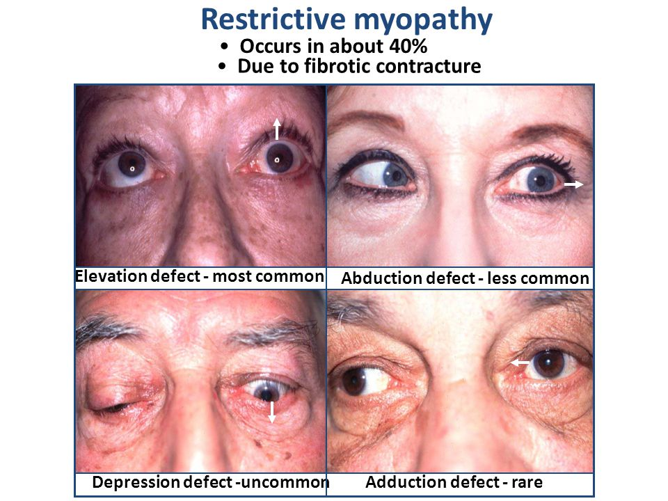 Restrictive myopathy Occurs in about 40% Due to fibrotic contracture