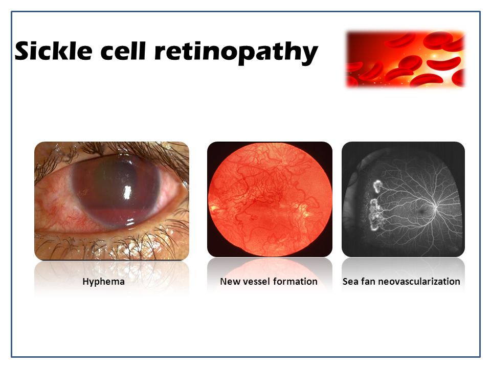 Sickle cell retinopathy
