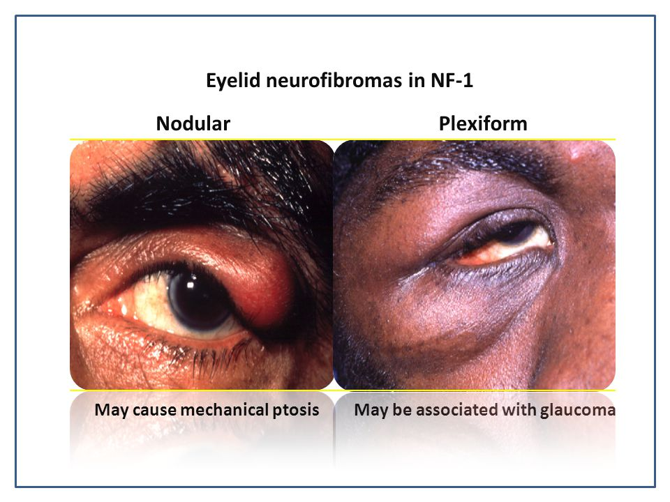 Eyelid neurofibromas in NF-1