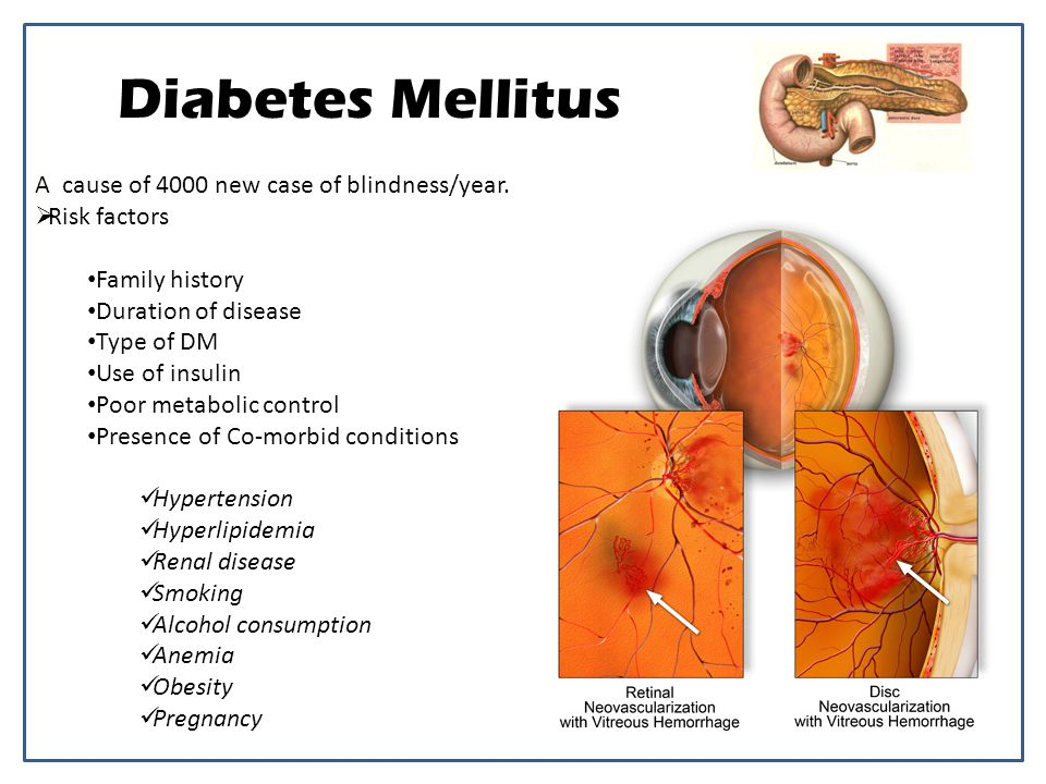 Diabetes Mellitus A cause of 4000 new case of blindness/year.
