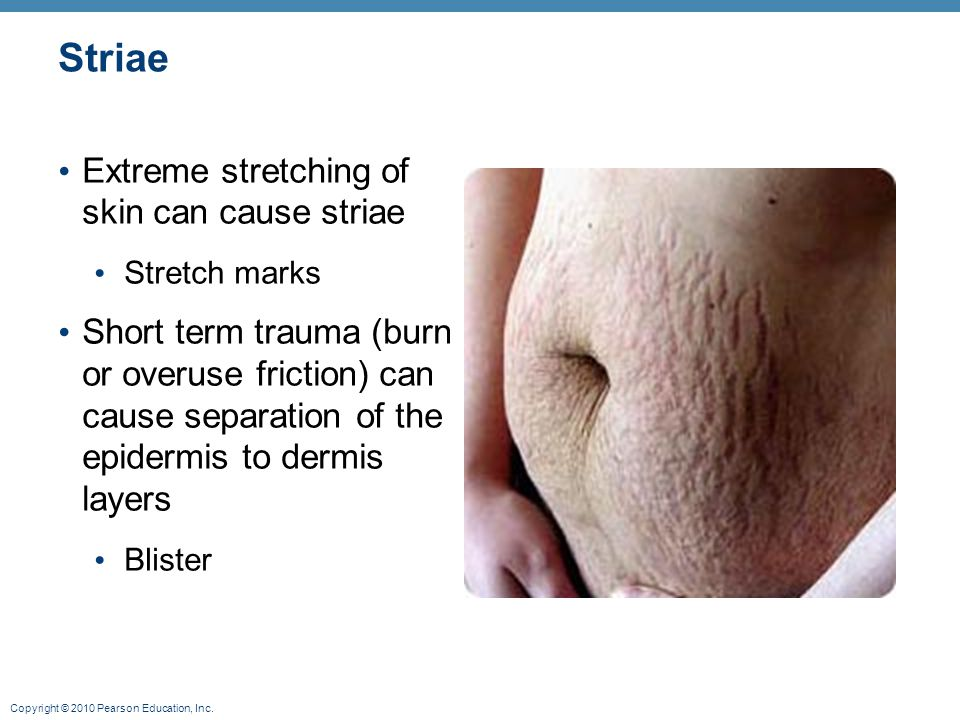 Striae Extreme stretching of skin can cause striae