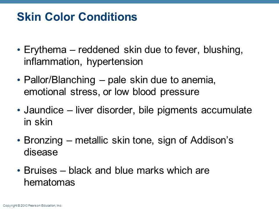 Skin Color Conditions Erythema – reddened skin due to fever, blushing, inflammation, hypertension.