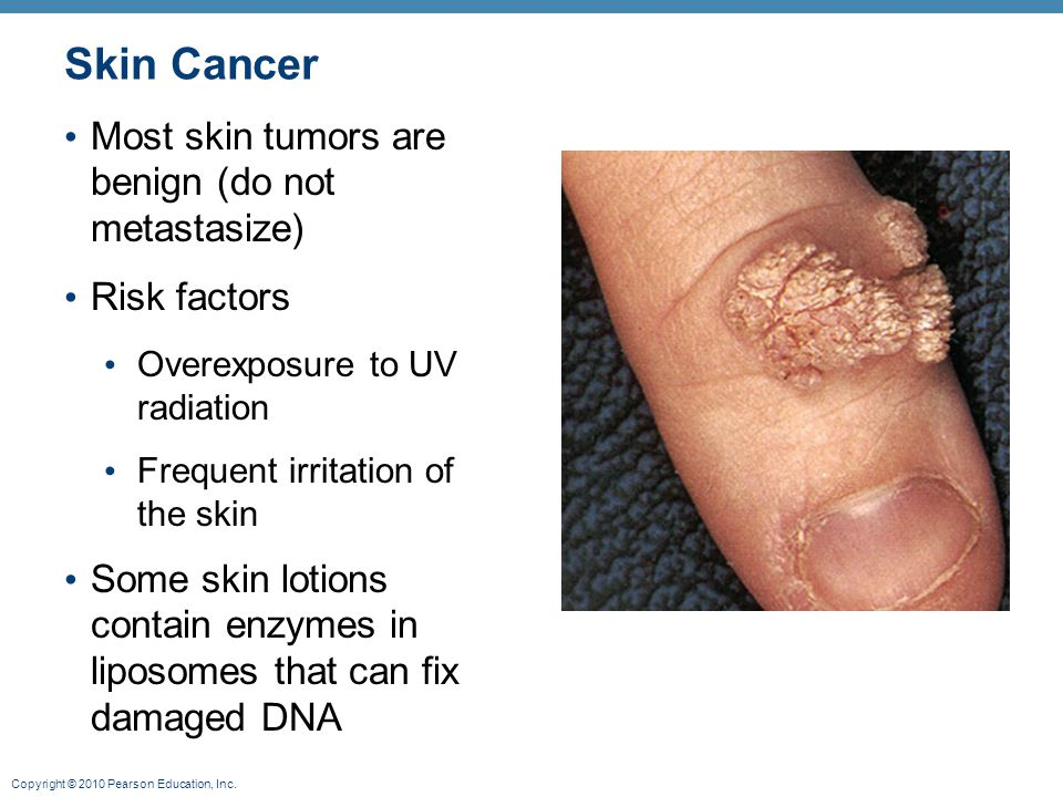 Skin Cancer Most skin tumors are benign (do not metastasize)