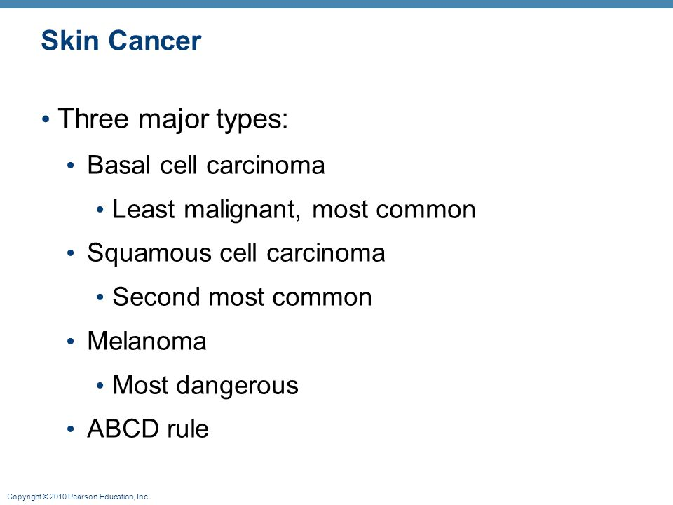 Skin Cancer Three major types: Basal cell carcinoma